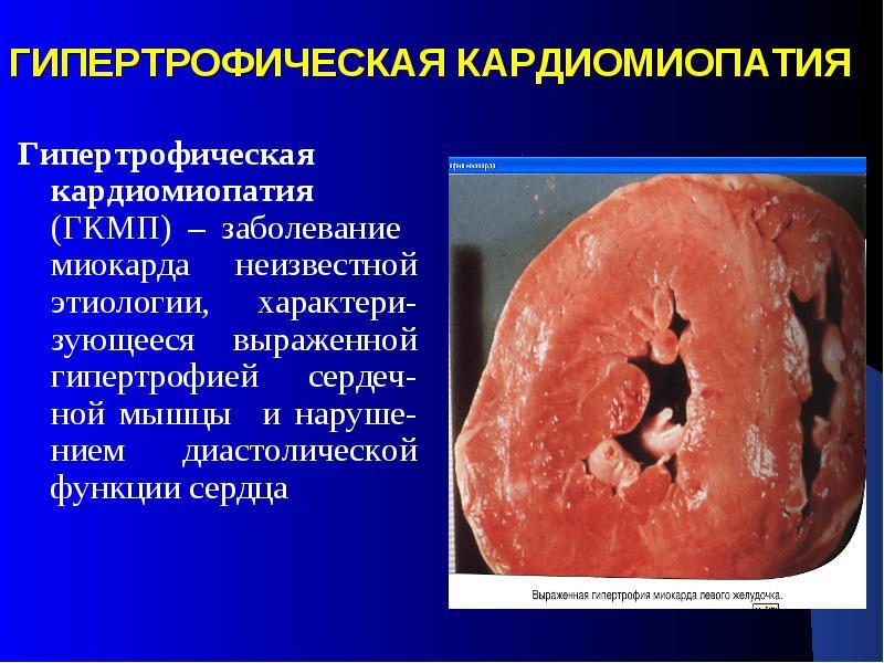 Что такое гипертрофия миокарда левого желудочка и чем она опасна