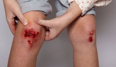 Эти симптомы столбняка у человека позволяют его диагностировать