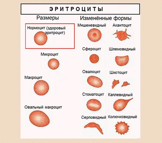 Rdw анизоцитоз в общем анализе крови ниже нормы
