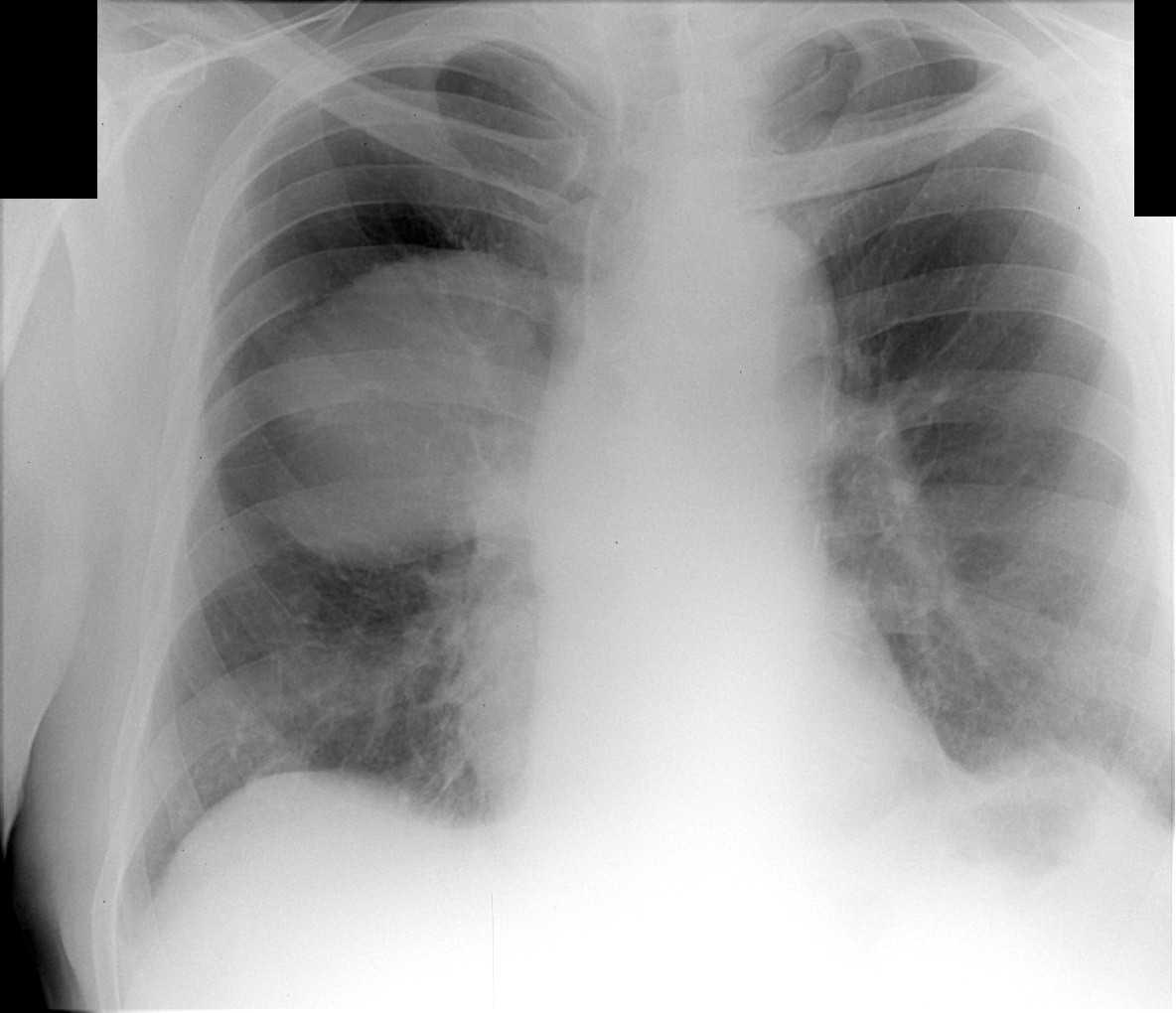 Туберкулема легких: что это такое и ее лечение