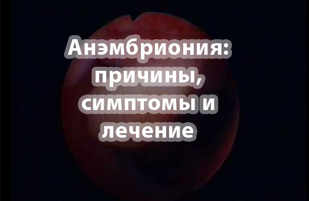 Анэмбриония - синдром пустого плодного яйца, хгч при анэмбрионии