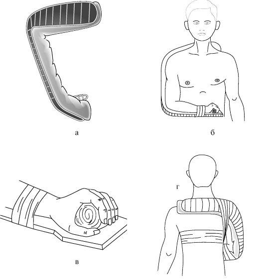 Транспортная иммобилизация пациента при переломах костей
