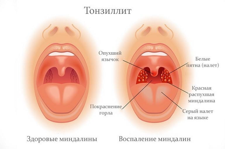Что такое тонзиллит: признаки и симптомы тонзиллита у взрослых
