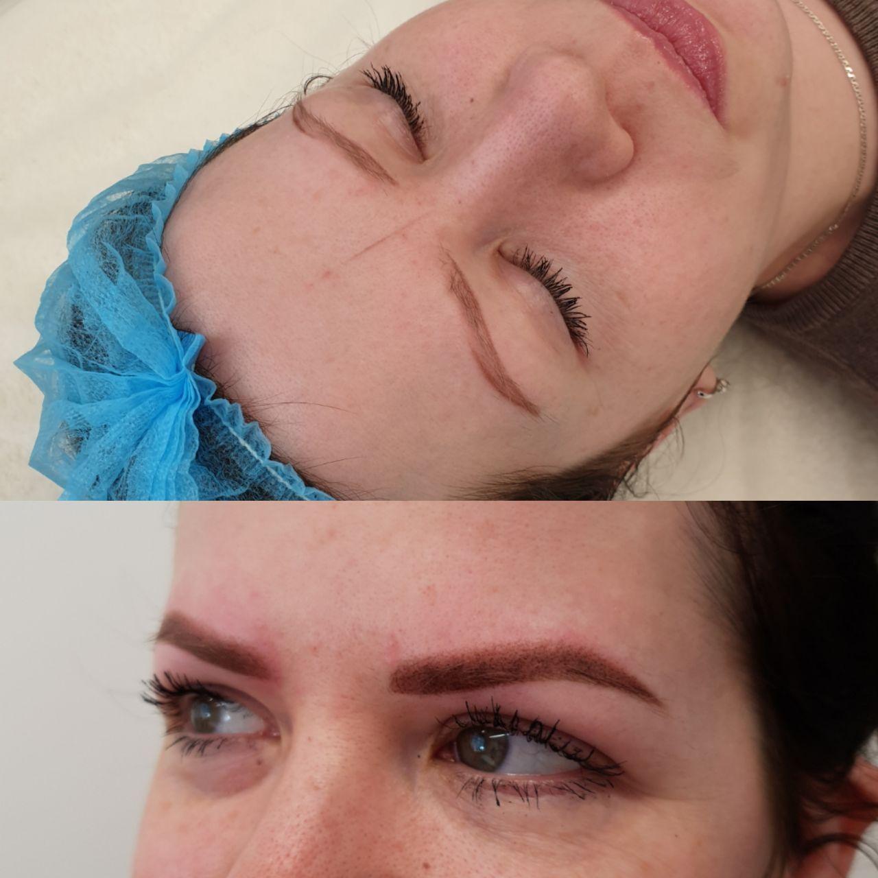 Фото до и после вагинопластики, кольпорафии