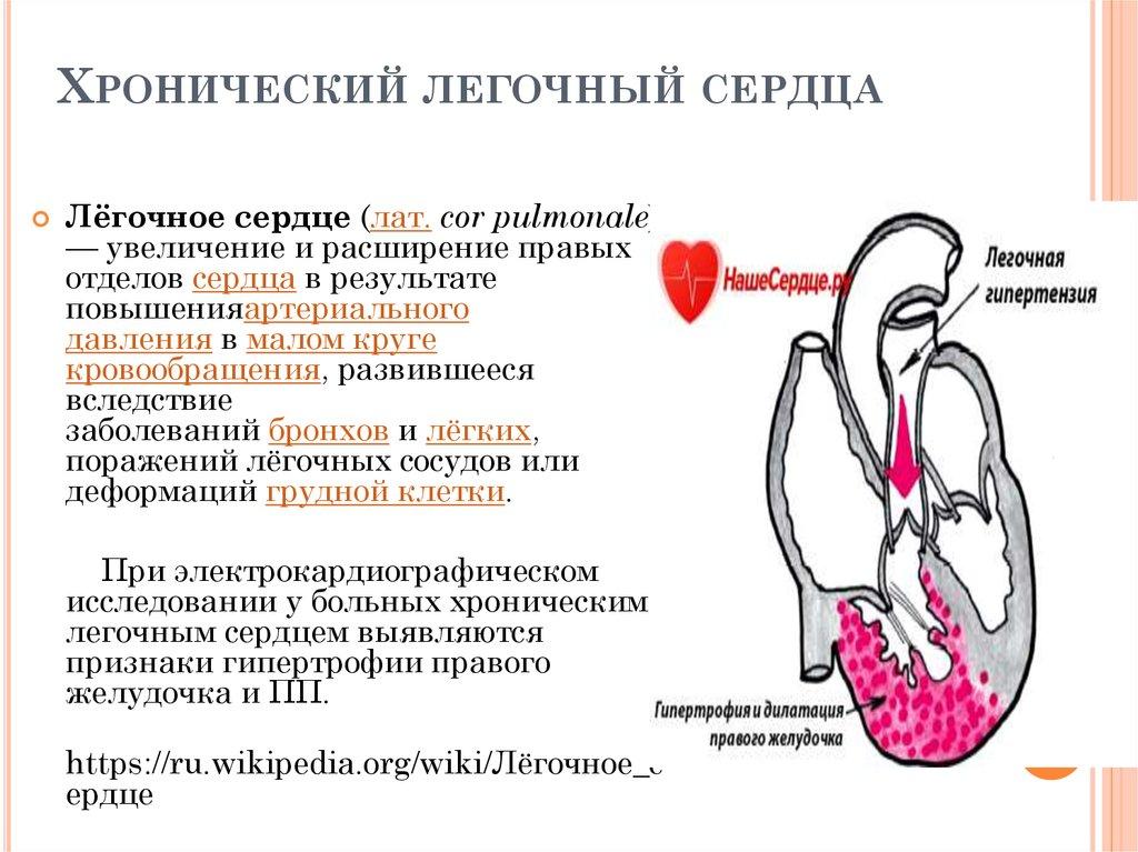 Лёгочное сердце — википедия. что такое лёгочное сердце