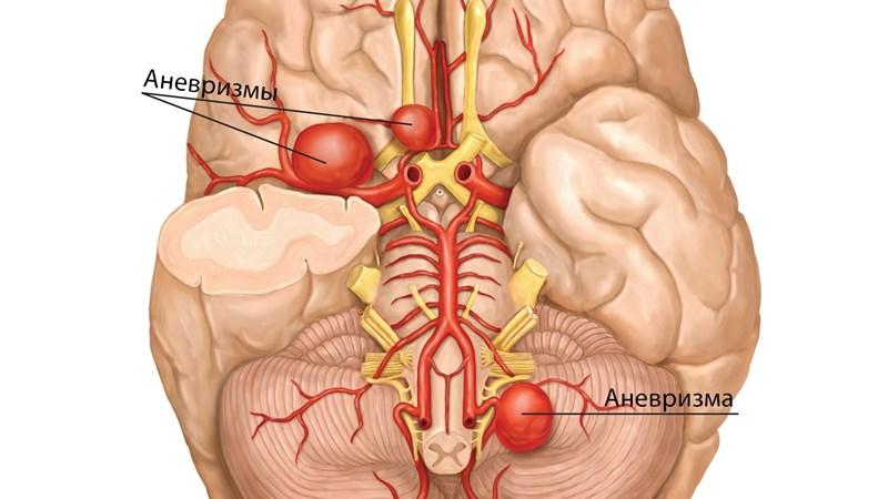 Последствия кровоизлияния в мозг: прогноз инсульта головного мозга у пожилых, сколько живут после удара, обширное кровоизлияние