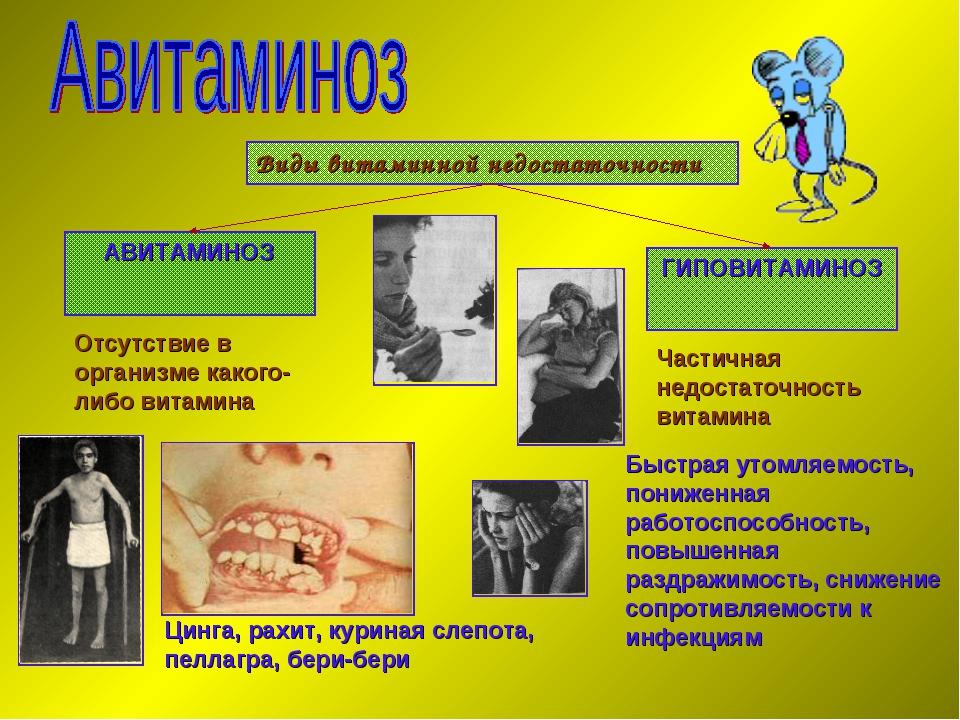 Гиповитаминоз витамина а: причины, симптомы, последствия