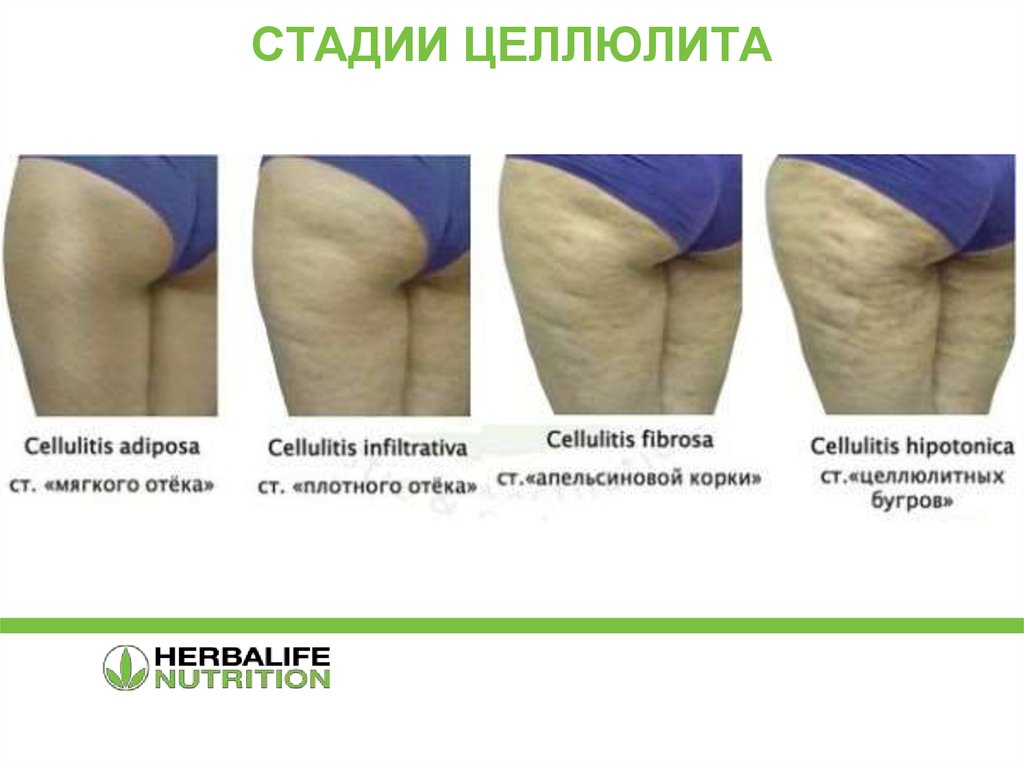 Что такое целлюлит и можно ли от него избавиться. причины возникновения целлюлита и его лечение: диета, обертывания, массаж