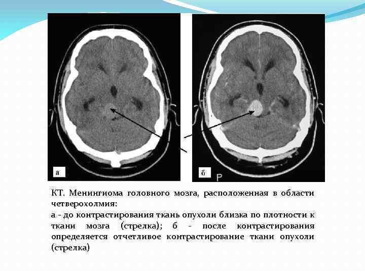 Особенности атипической менингиома и прогноз выживаемости