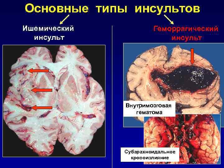 Ишемический инсульт головного мозга: симптомы и причины