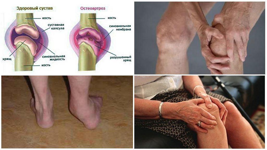 Остеоартроз что это такое и как его лечить