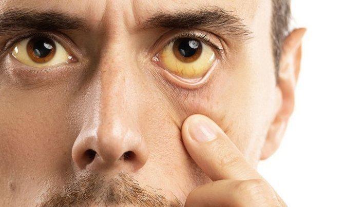 Гипербилирубинемия - лечение, причины, симптомы