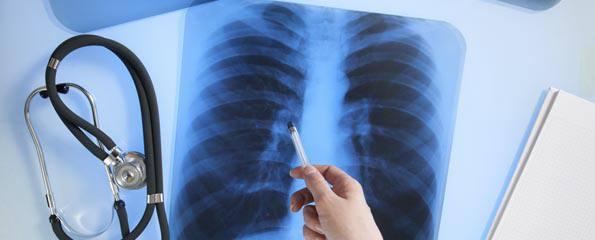 Что такое альвеолит лёгких, его симптомы и лечение pulmono.ru что такое альвеолит лёгких, его симптомы и лечение