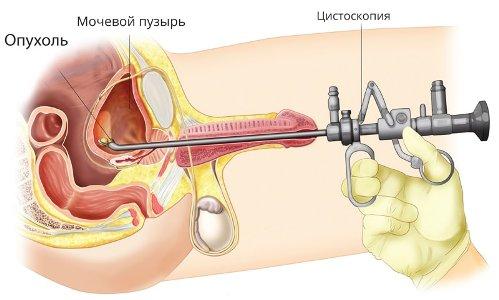 Как расшифровать узи мочевого пузыря | университетская клиника