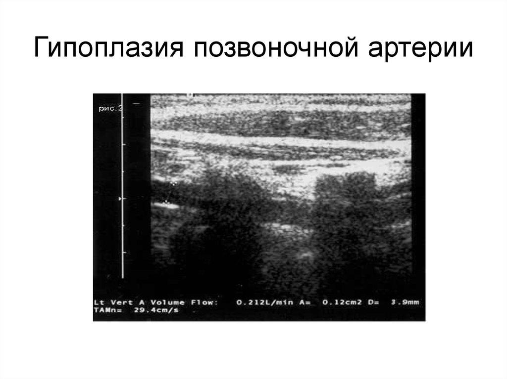 Гипоплазия правой позвоночной артерии