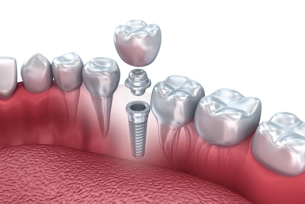 Полный обзор всех существующих протоколов и стоимости имплантации зубов
