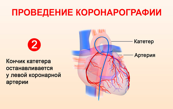 Что такое коронарография и как ее делают — сердце