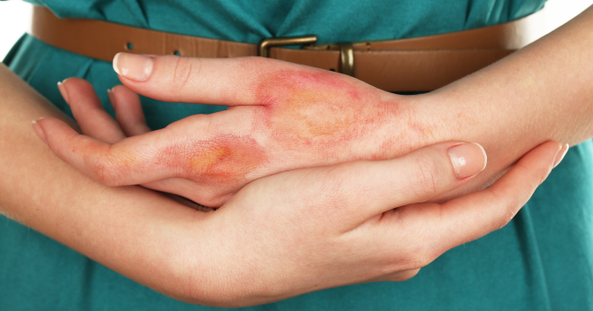 Термический ожог —  правила оказания доврачебной и медицинской помощи