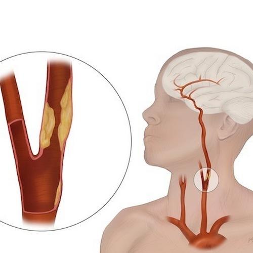 Брахиоцефальные артерии и их функция в организме человека