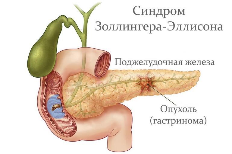 Синдром золлингера – эллисона – симптомы и лечение