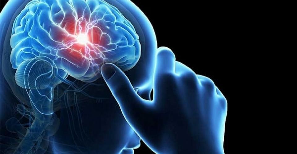 Цереброваскулярная болезнь что это такое — про сосуды