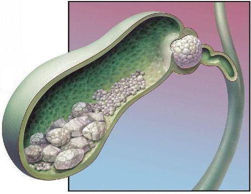 Симптомы и признаки при камнях в желчном пузыре
