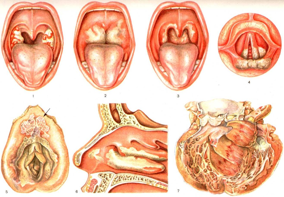 Дифтерия. причины, симптомы и признаки, диагностика и лечение болезни :: polismed.com