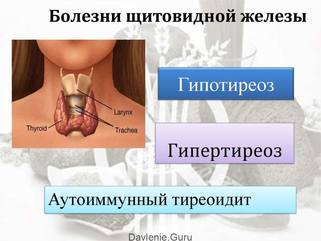 Тиреотоксикоз - диагностика лечение симптомы — евромедклиник