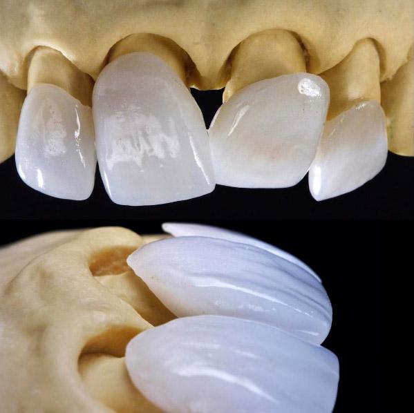 Виниры для зубов — что это такое?