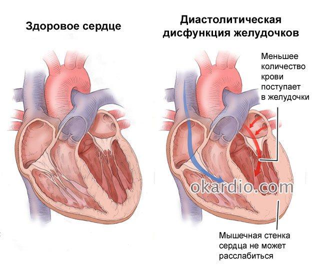 Что такое диастолическая дисфункция левого желудочка 1 типа? — сердце