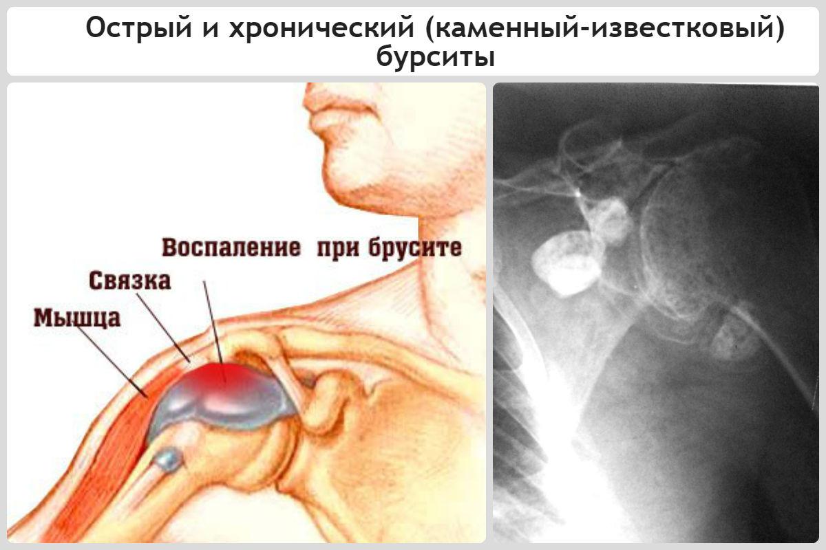 Бурсит плечевого сустава: симптомы и лечение, что это такое, препараты