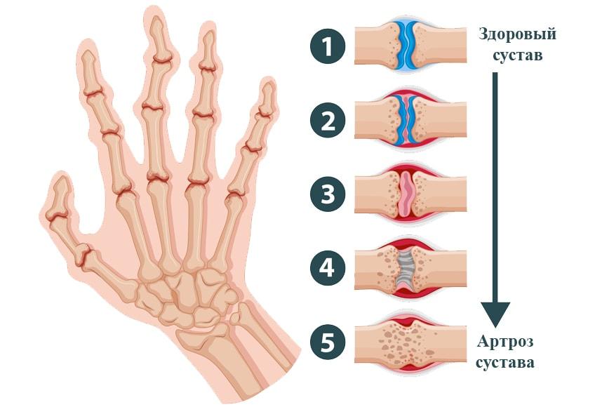 Ревматоидный артрит симптомы лечение, диагностика что это такое