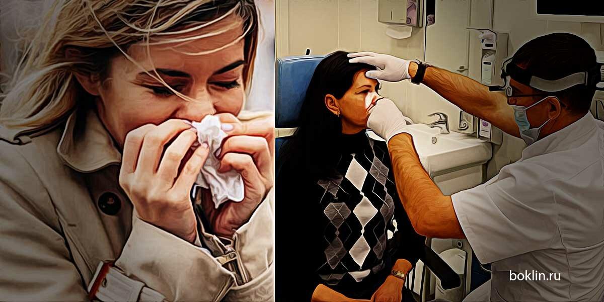 Ринорея – лечение, симптомы, причины, как быстро остановить ринорею