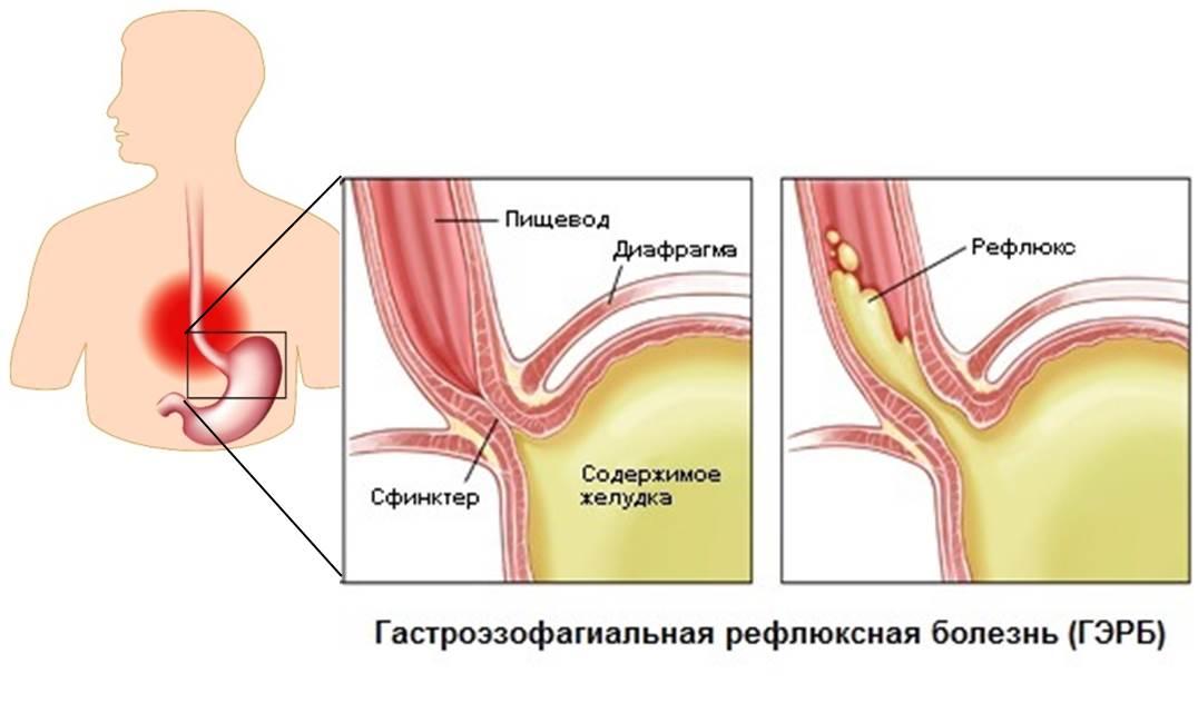 Явления рефлюкс эзофагита а степени - билиарный, острый, атрофический