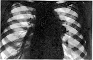 Вторичная лимфаденопатия