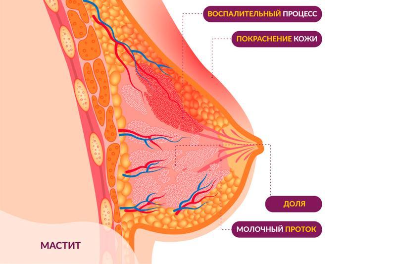Мастит: симптомы, виды, причины, профилактика и лечение