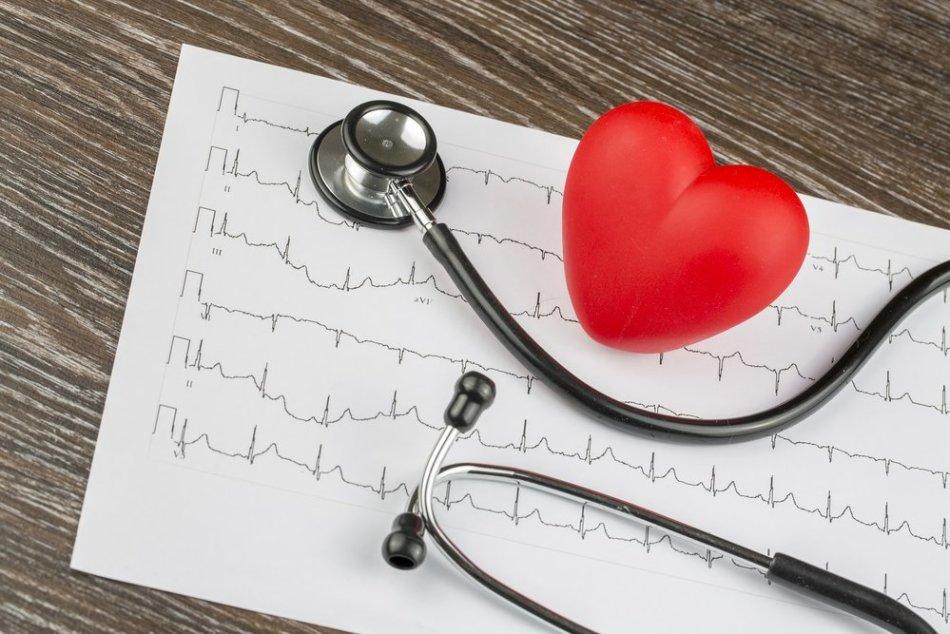 Аритмия сердца – что это такое, и как лечить?