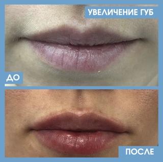 Увеличение губ: противопоказания, возможные осложнения, фото до и после