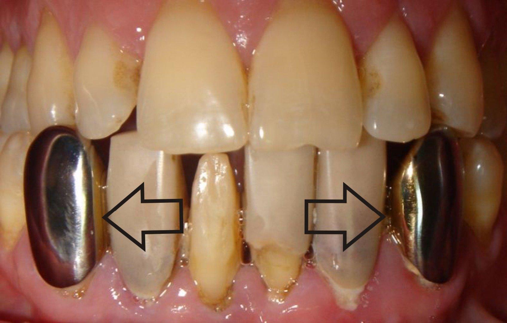 Зубной камень: классификация и причины - методы чистки и профилактика - много зубов