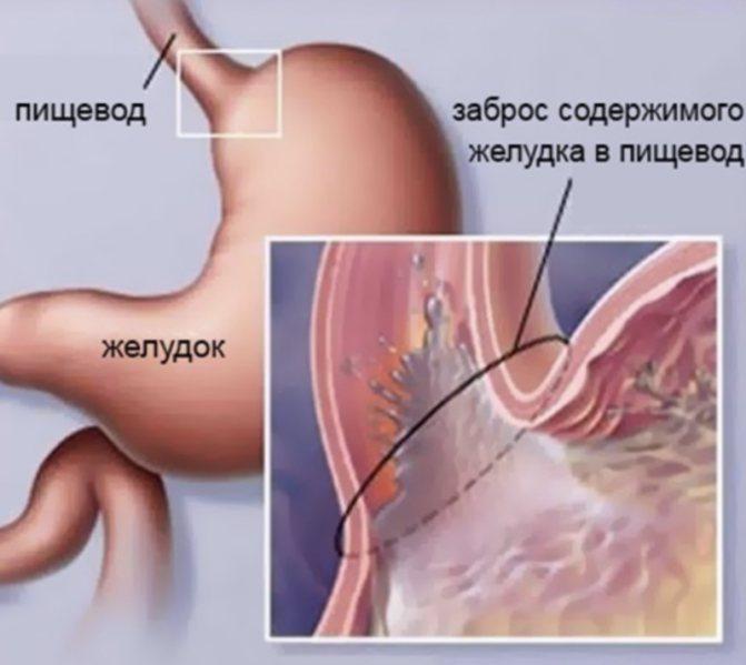 Рефлюкс-эзофагит – симптомы и лечение (препараты). катаральный, эрозивный, дистальный, билиарный рефлюкс-эзофагит – что это такое?