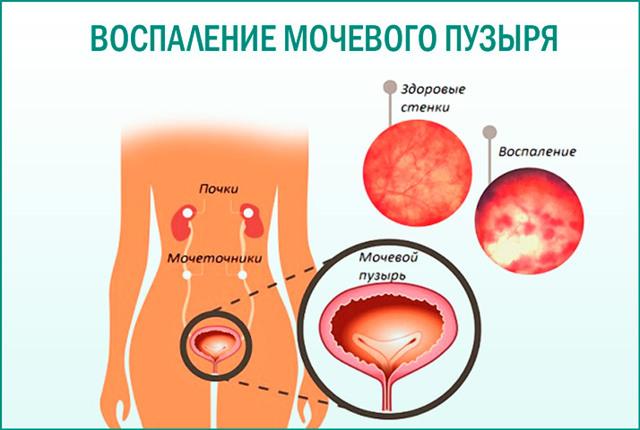 Что такое цистит? | компетентно о здоровье на ilive