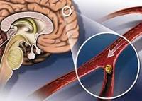 Церебральный атеросклероз: симптомы и лечение