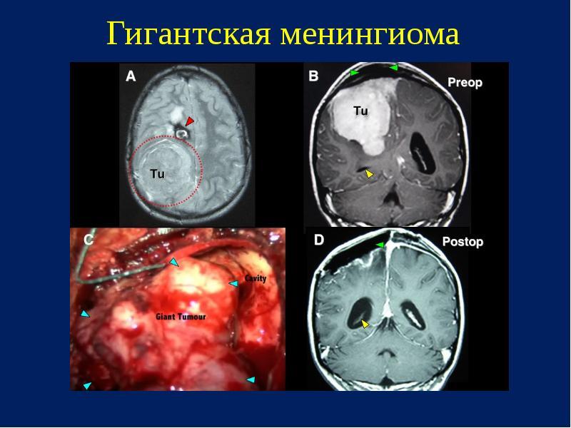 Опасность и особенности менингиомы лобной доли головного мозга
