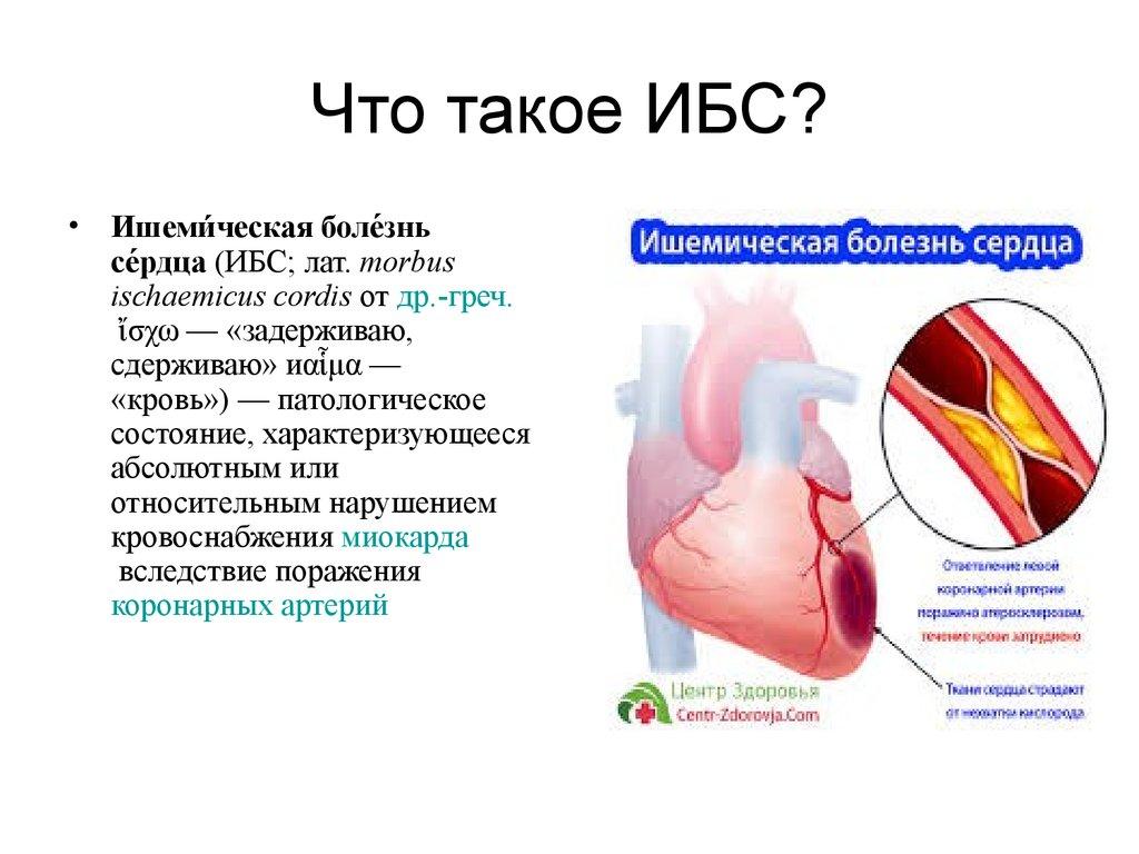 Ишемическая болезнь сердца-диагностика, методы лечения ибс