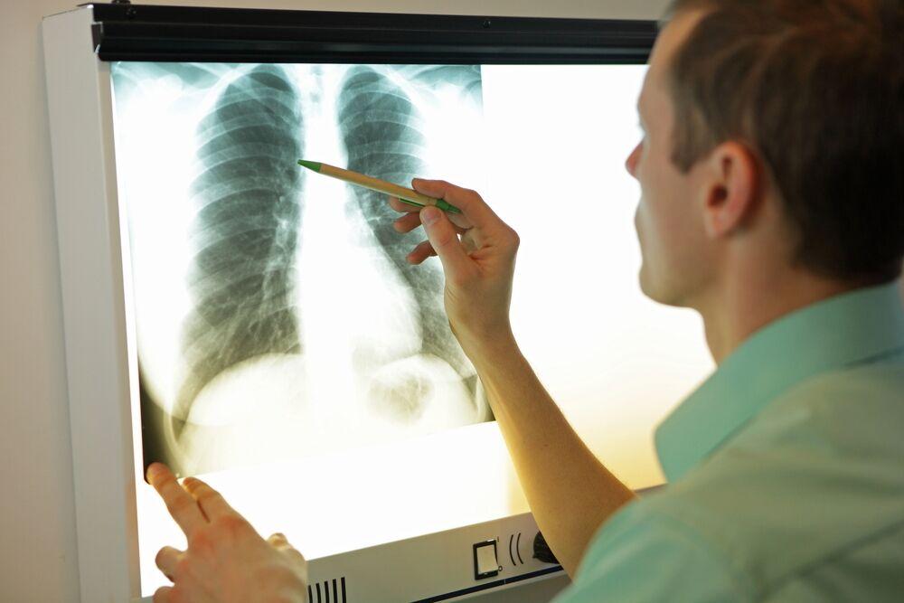 Симптом матового стекла в легких: что это такое, общая информация, клиническая картина, диагностические исследования, методы лечения