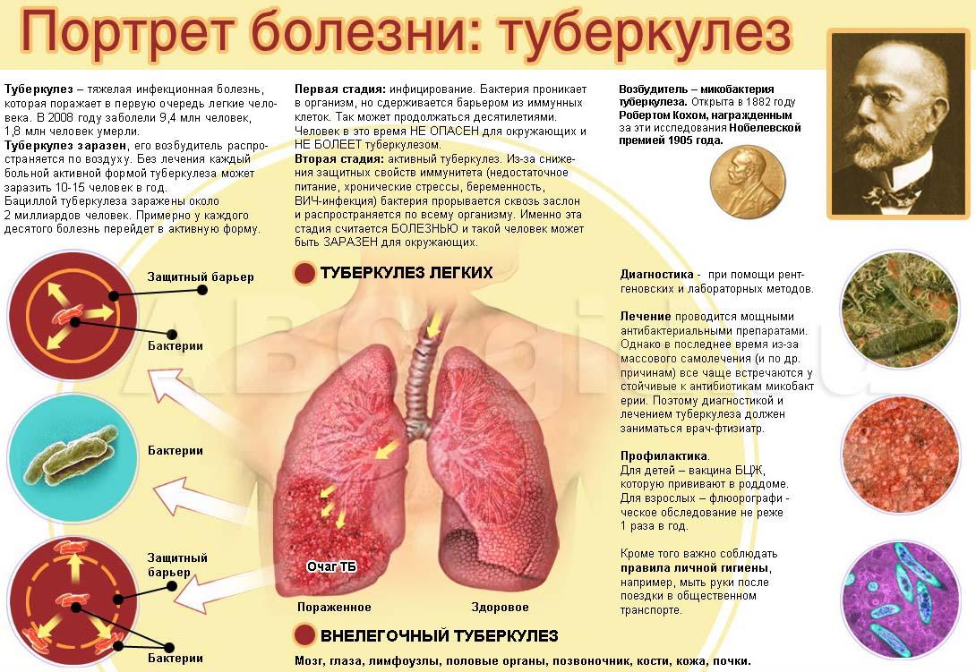 Туберкулез легких или что такое чахотка?