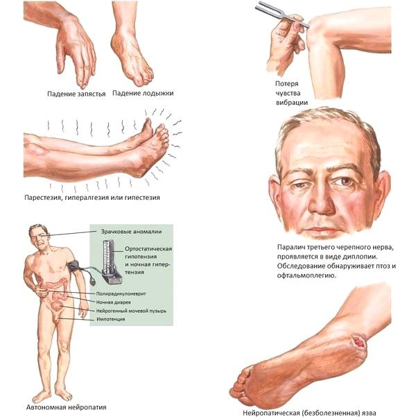 Диабетическая полинейропатия: симптомы, формы и как лечить