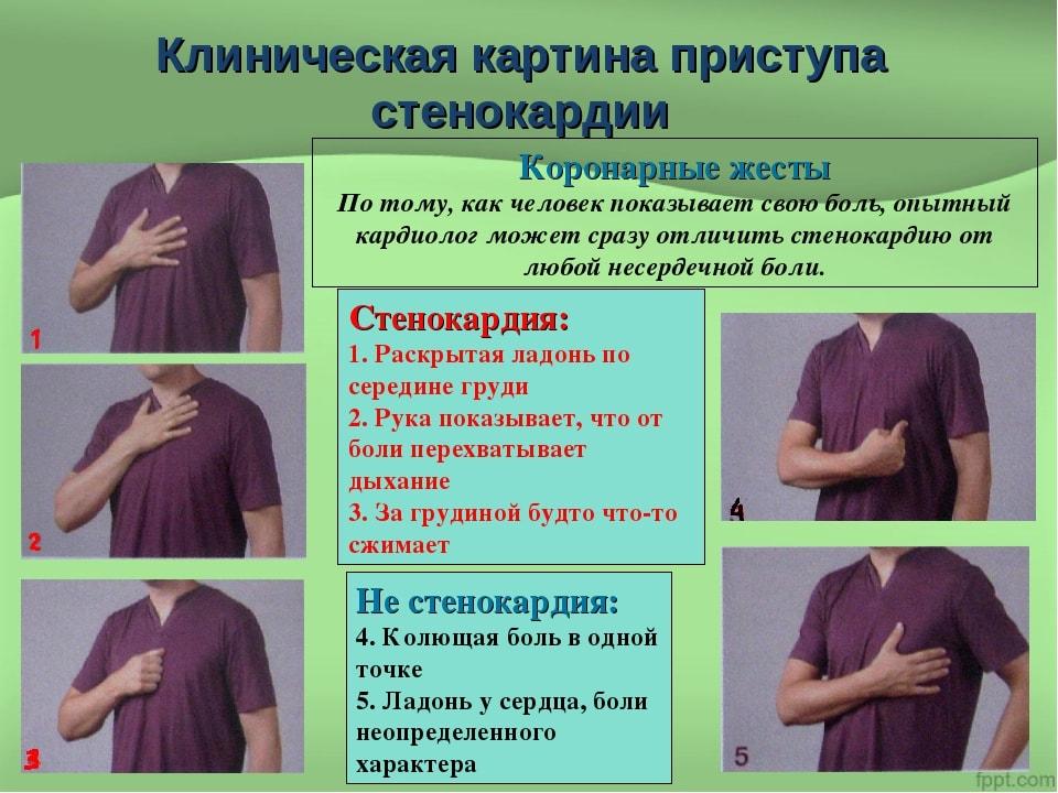 Стенокардия (грудная жаба), причины, симптомы, лечение.