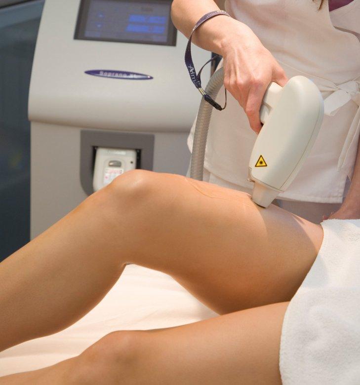 Как делают лазерную эпиляцию: что нужно, противопоказания, достоинства и недостатки процедуры