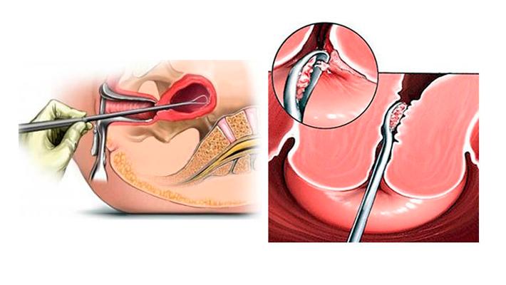Гистероскопия с раздельным диагностическим выскабливанием (рдв)
